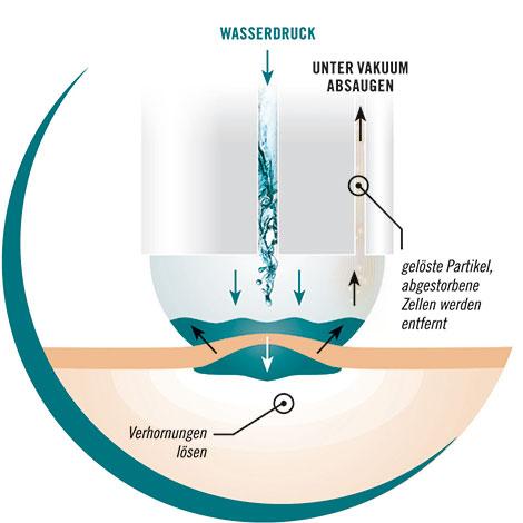 Aquabrasion